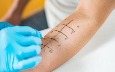 Testarea alergologică cutanată de tip prick