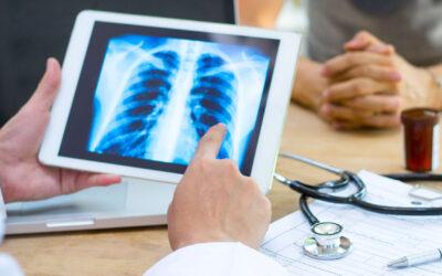 Pneumonia – cauze, simptome, diagnostic și tratament